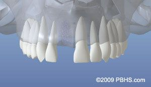 Implant Placement - Healed Bone
