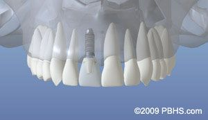 Implant Placement - Implant Placed
