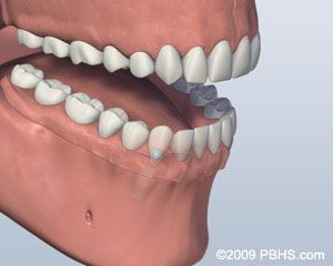 Before Ball Attachment Denture 3