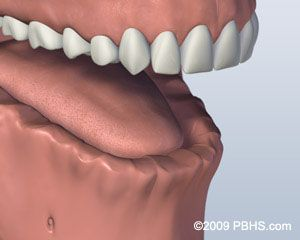 Before Screw Retained Denture 1