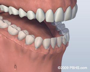 Before Screw Retained Denture 3