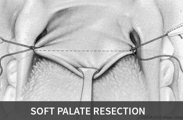 Soft Palate Resection