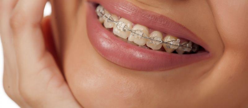 teenage with braces