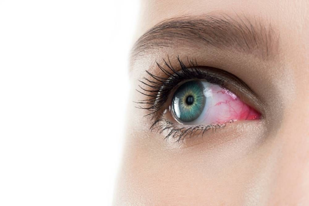 Dry Eye: Causes and Symptoms