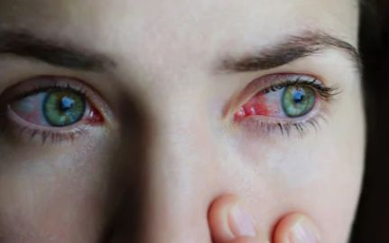 The Different Types of Conjunctivitis