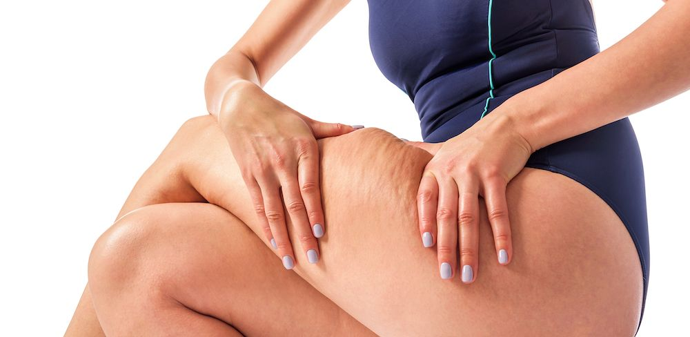 woman squeezing fat on thigh