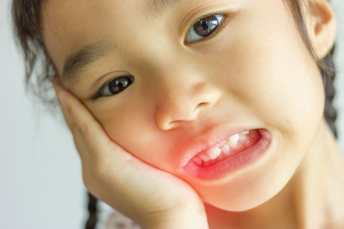 Abscessed Tooth in Children: Care Instructions