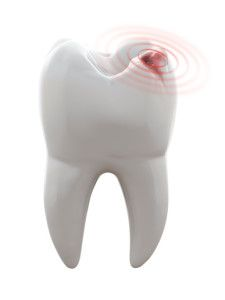 Why Early Detection of Tooth Decay is So Important