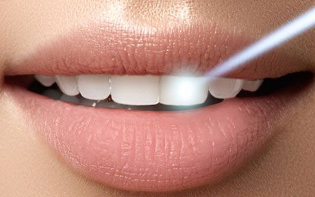 E4D Porcelain RestorationLaser Technology