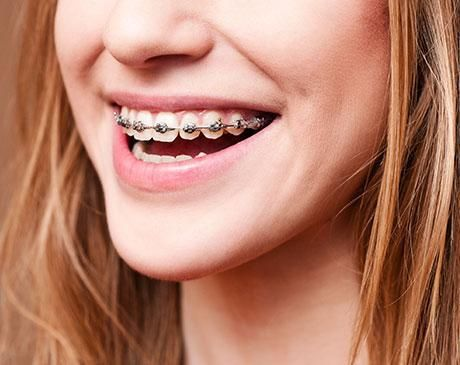 loose orthodontic wire