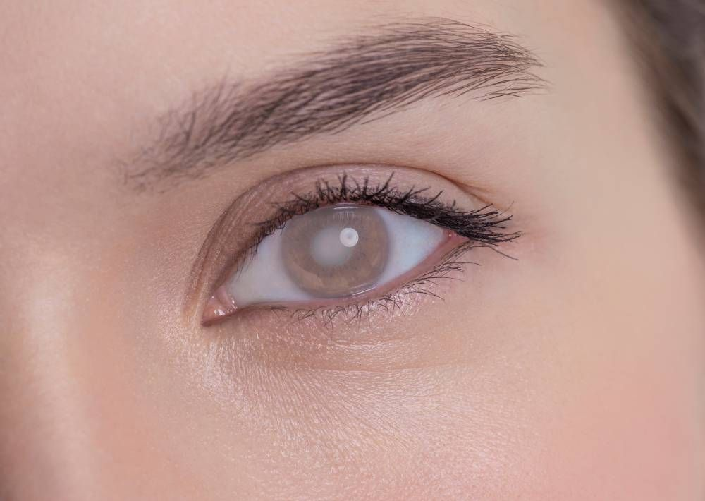 Signs and Treating Cataracts