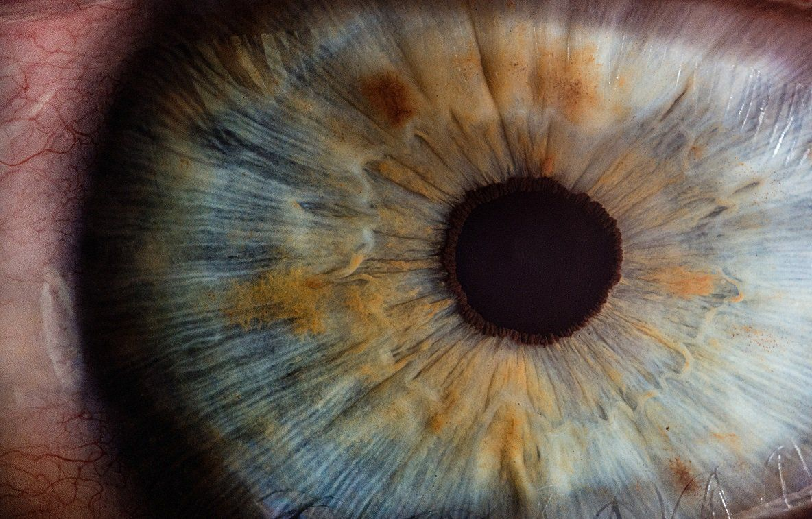 What if You Move Your Eyes During LASIK? - Manhattan Lasik Center