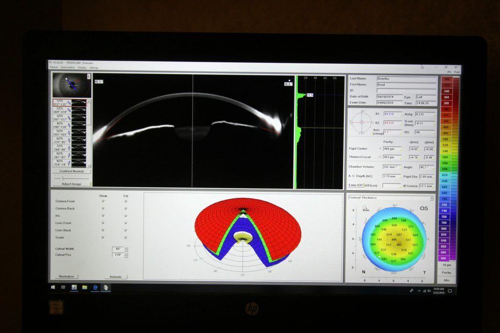 oculus pentacam monitor