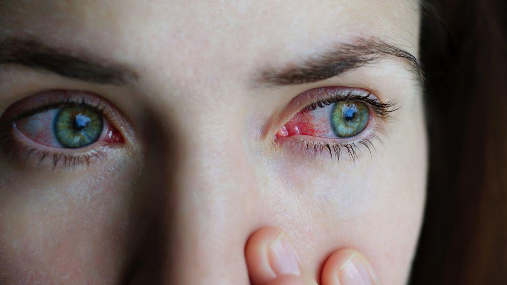 pink eye patient