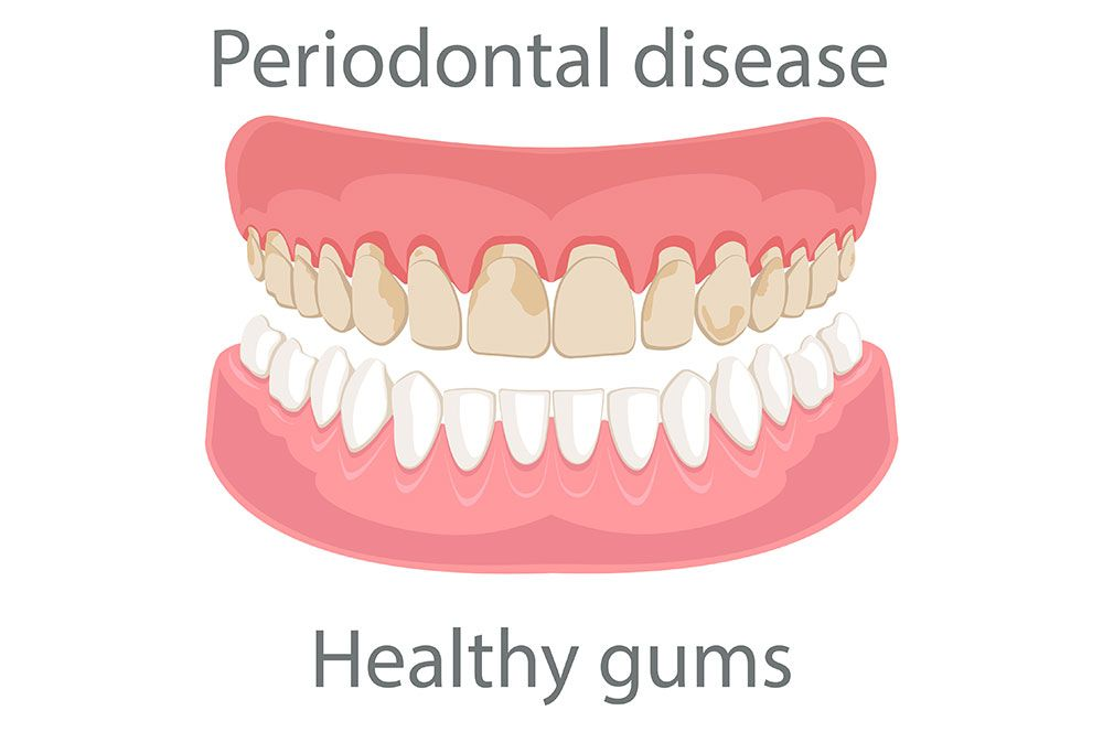 gum disease treatment manteca