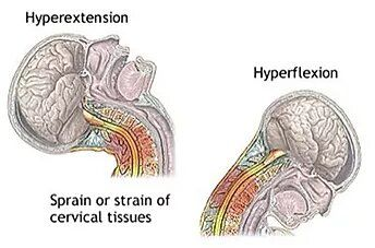 hyperextension of neck
