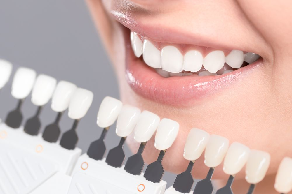 Rebuild Your Smile with Dental Implants