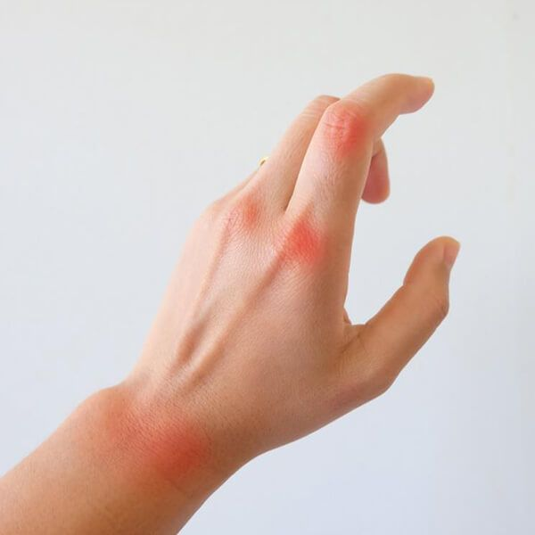 Hand Infections and Injuries