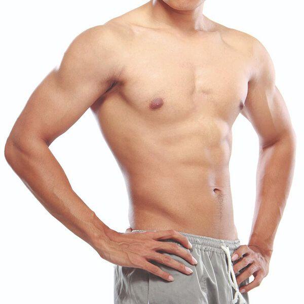 Male Gynecomastia