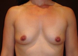 natural breast augmentation before