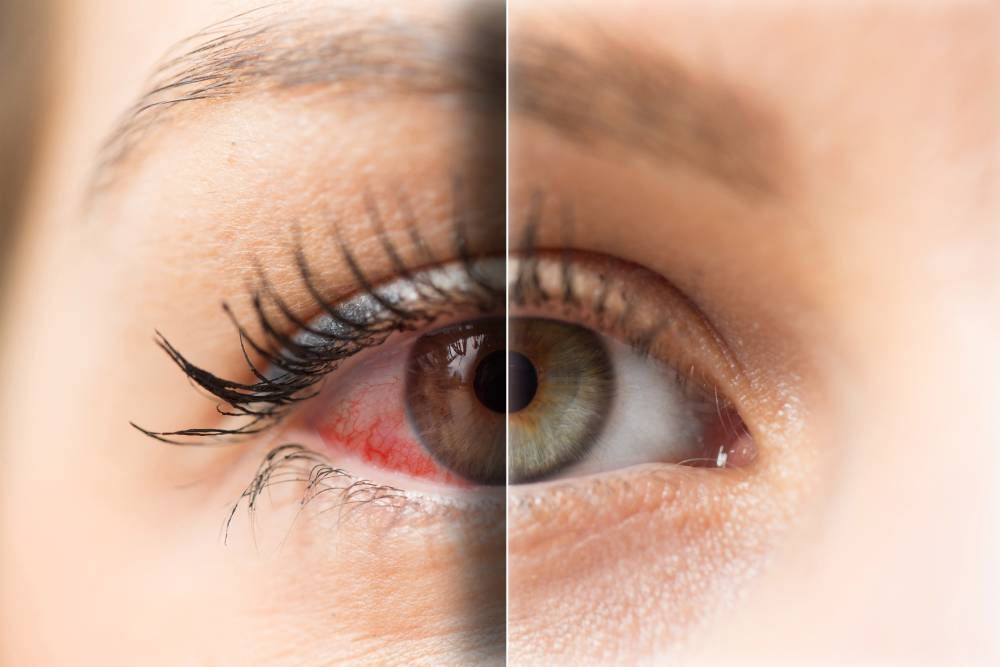 Preventing Ocular Allergies