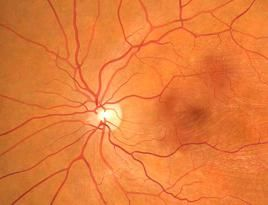 treating macular degeneration