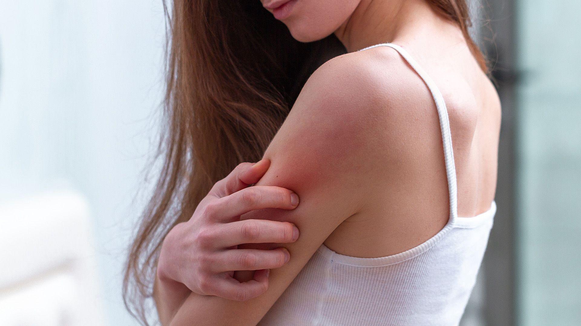 Eczema, Psoriasis and Acne