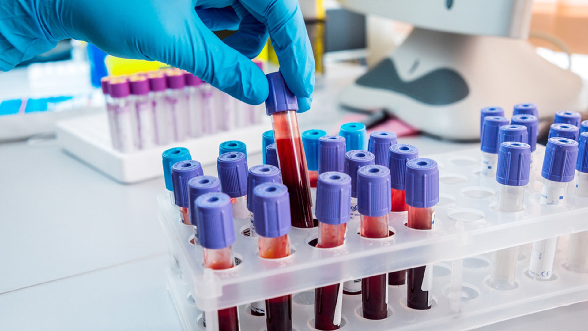Nutritional Blood Analysis