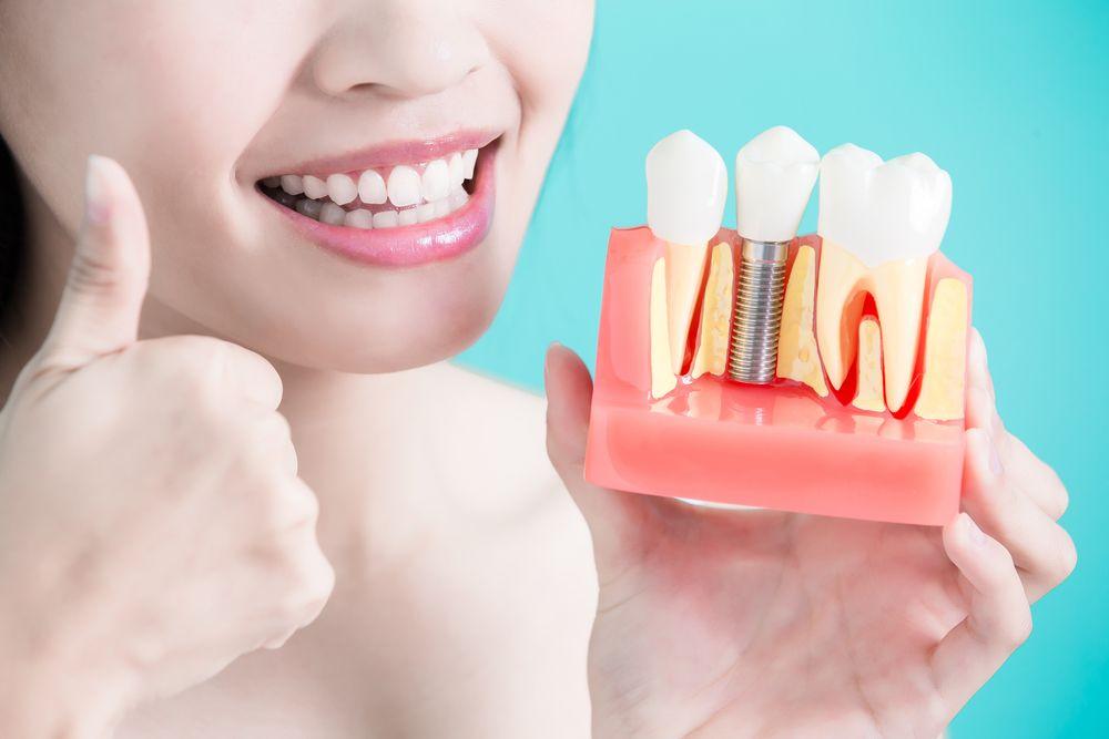 Dental Implant Bone Grafting