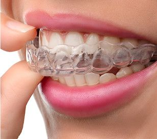 Superfast Invisalign