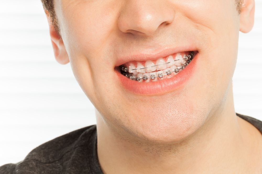 smiling man with braces​​​​​​​