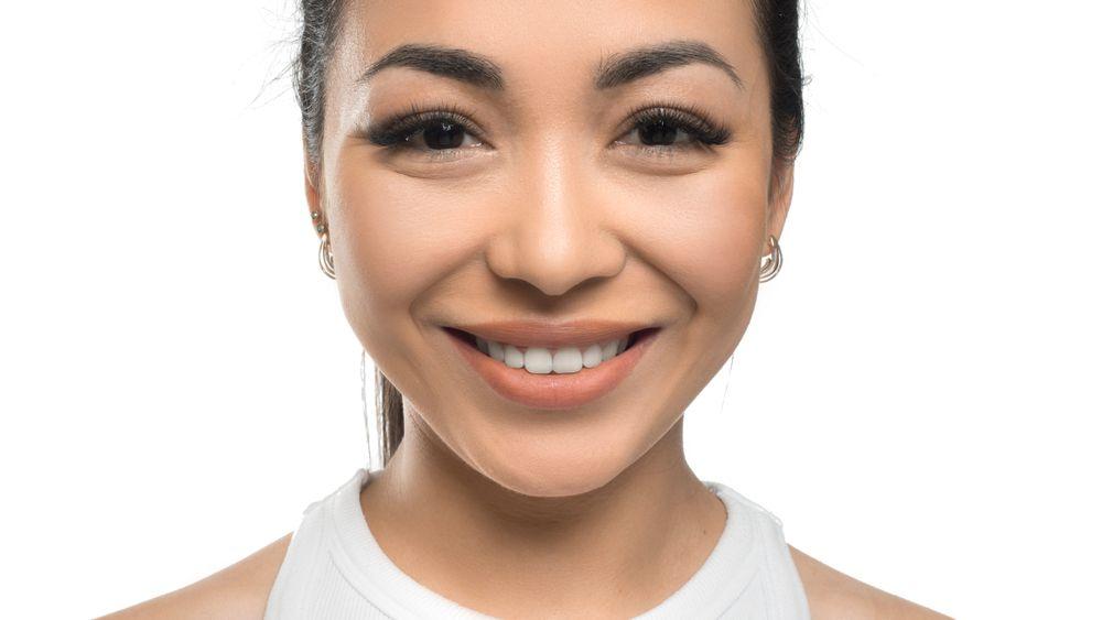 Benefits of Invisalign® vs Braces