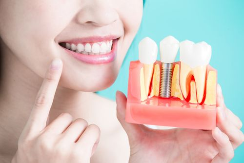 woman holding dental implant structure