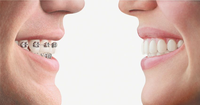 Get A Beautiful Confident Smile with Orthodontics In Rockford