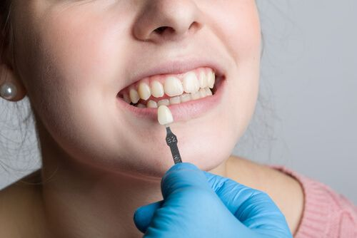 lady choosing veneers