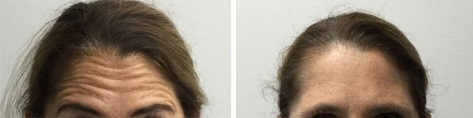 before and after wrinkle filler