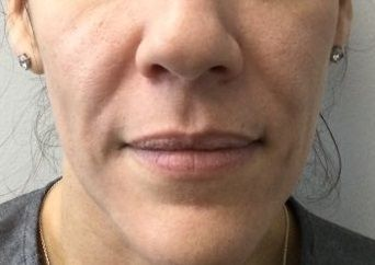 Fillers Before