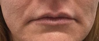 Fillers After