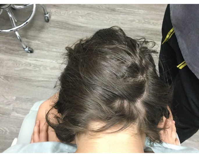 Alopecia After Treatment