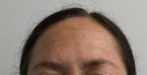 Botox After Treatment