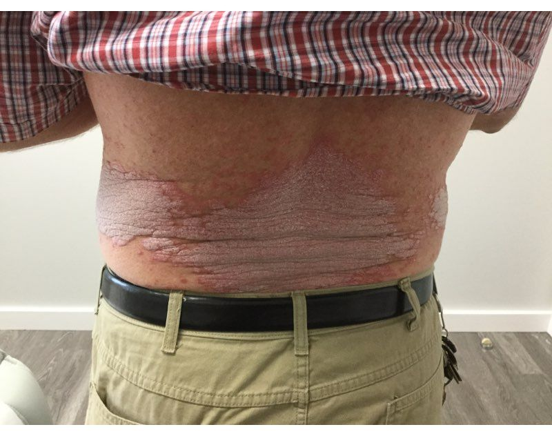 Psoriasis Before Treatment