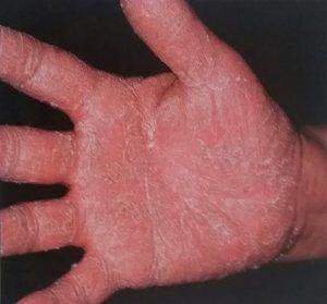 hand with eczema