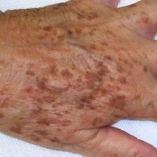hand with liver spots