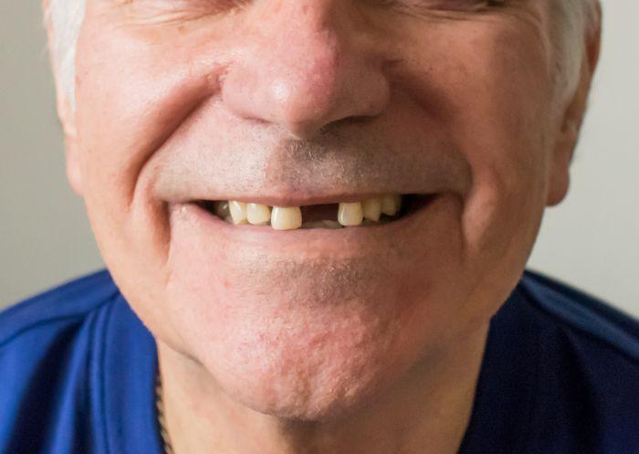 Dental Options for Replacing Missing Teeth