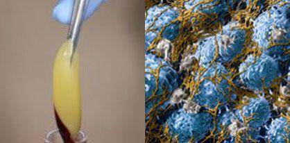 Platelet-Rich-Fibrin (PRF)