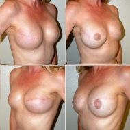 before and after nipple reconstruction