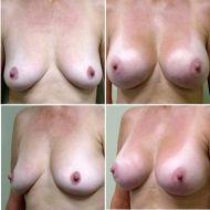 breast lift patients