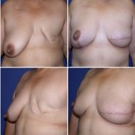 before and after breast reconstruction