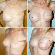 lattisimus flap breast reconstruction