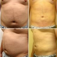 Liposuction in San Diego